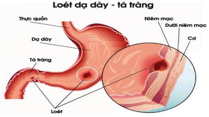 loet-da-day1